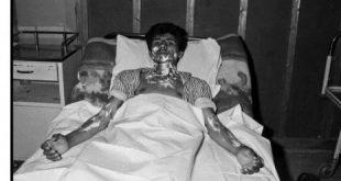 ۱۱ مردادماه سالروز بمباران شیمیایی اشنویه